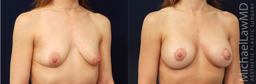 o-breast lift before and afters in raleigh NC
