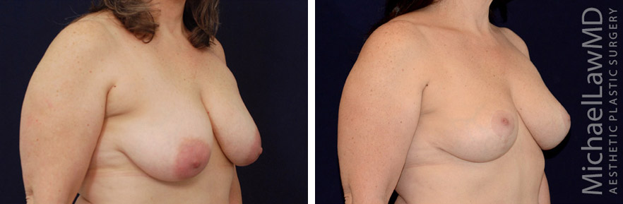 o-breast lift before and after