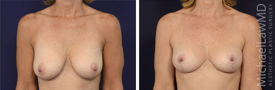 f-breast lift before and after