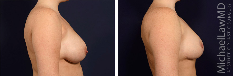l-breast lift before and after