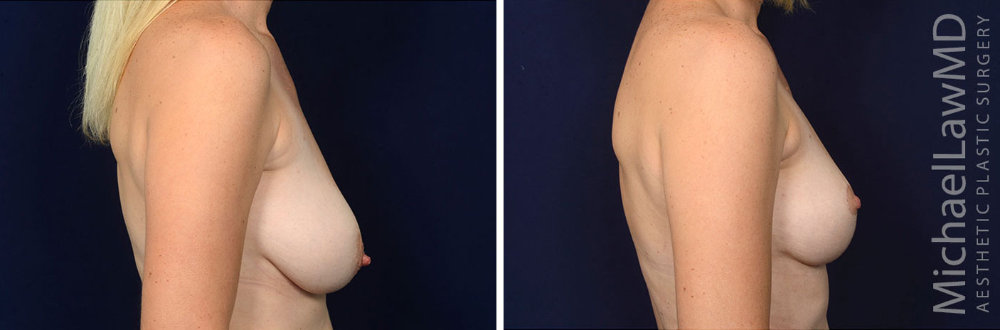 l-breast lift before and afters in raleigh NC