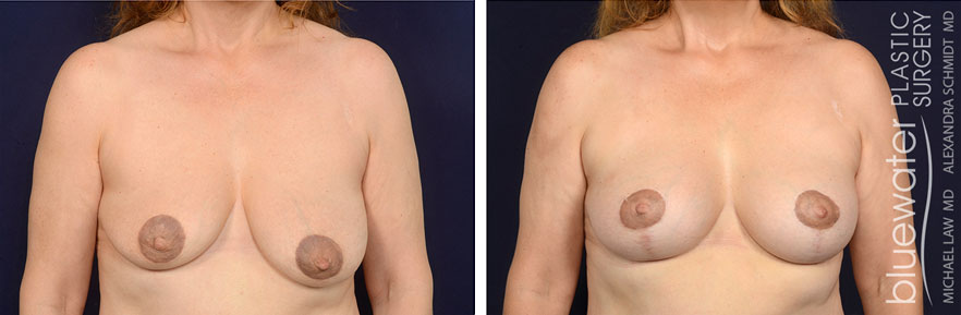 breastlift1a_2_8_21