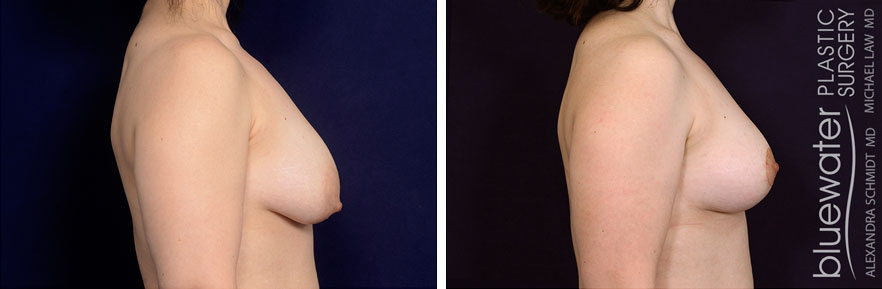 breastlift1a_5_10_21