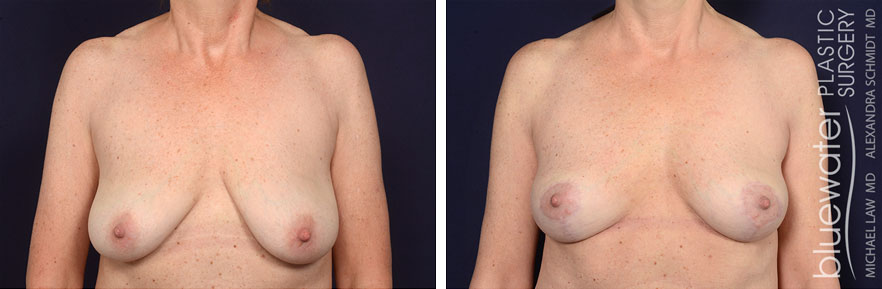 breastlift1c_2_22_21