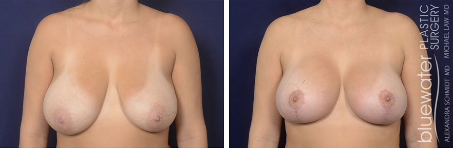 breastlift2a_2_8_21