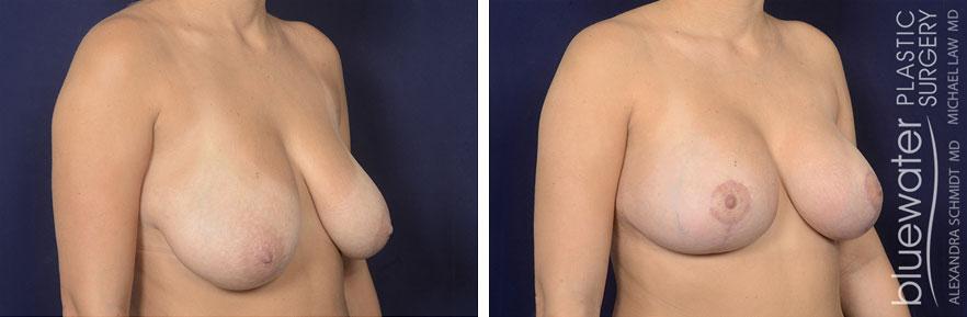 breastlift2b_2_8_21