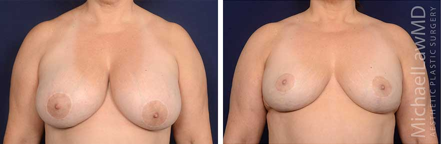 Breast Reduction Before and Afters in Raleigh NC