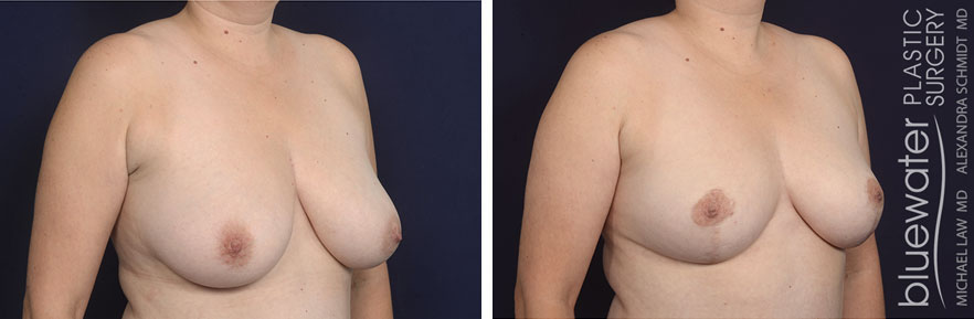 breastred1b_12_7_20