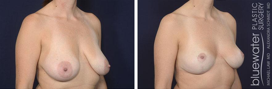 breastred1b_12_8_20