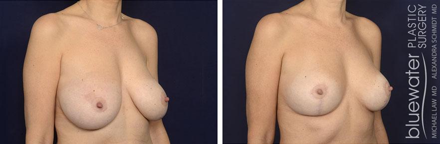breastred1b_1_13_21