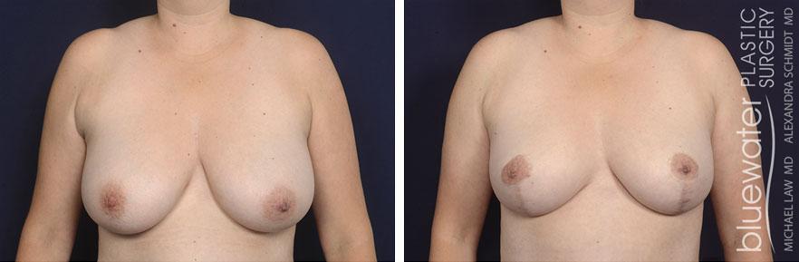 breastred1c_12_7_20