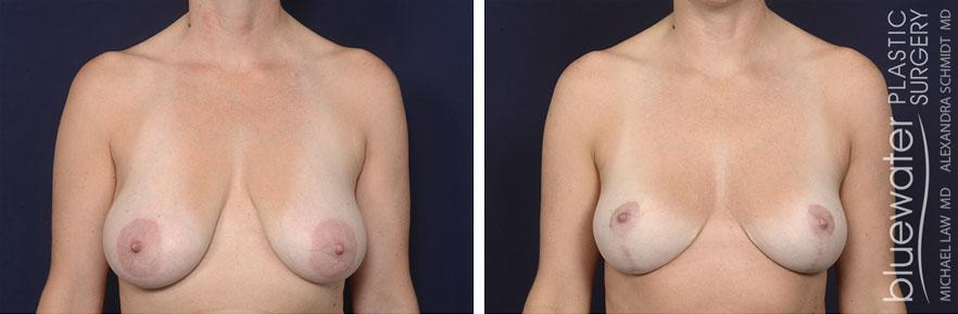 breastred1c_12_8_20