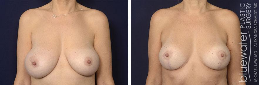 breastred1c_1_13_21