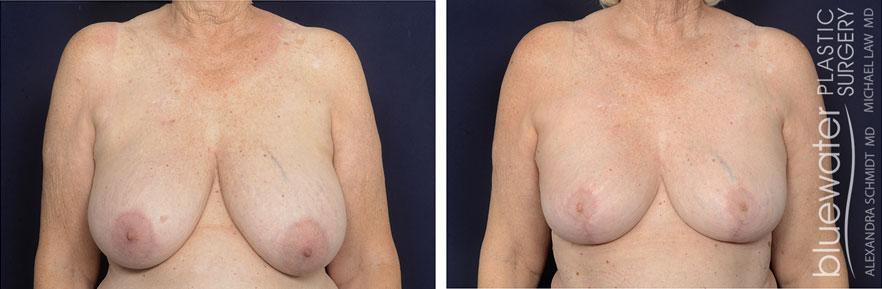 breastred1c_1_15_21