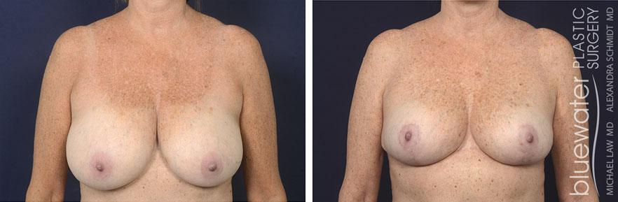 breastred1c_3_17_21