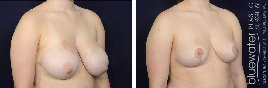 breastred2b_1_15_21