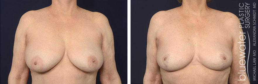 breastred2c_3_17_21