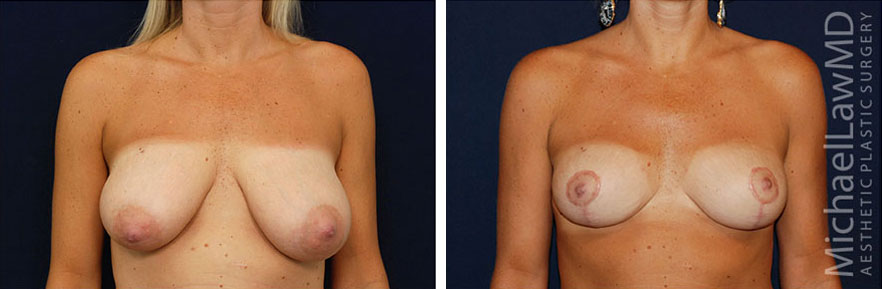 f-Breast Reduction Before and Afters in Raleigh NC