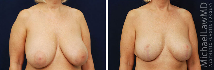 o-Breast Reduction Before and Afters in Raleigh NC