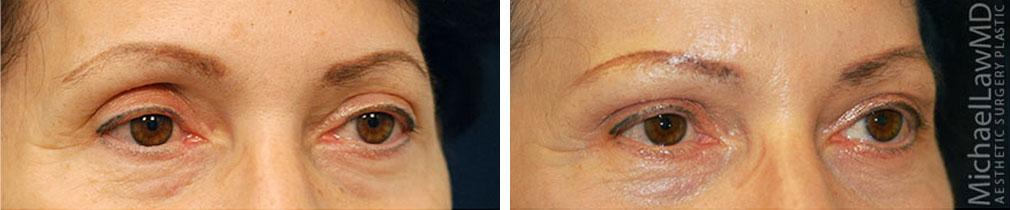 eyelid surgery raleigh