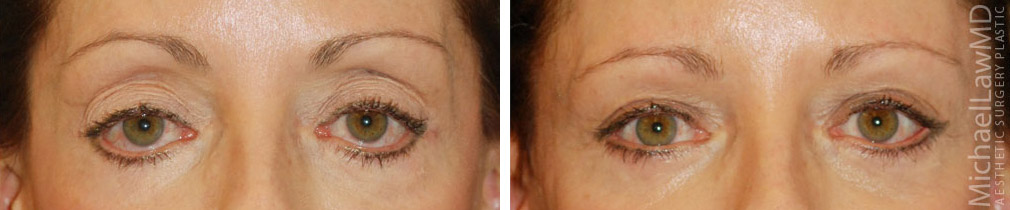eyelid rejuvenation raleigh