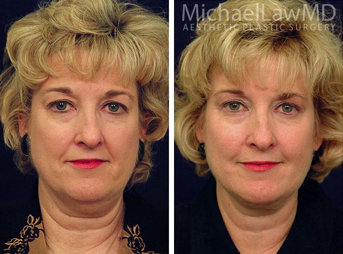 eyelid rejuvenation raleigh