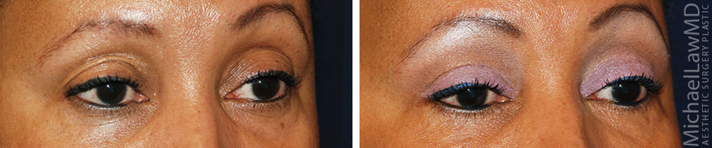 blepharoplasty before and afters