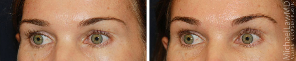 eyelid surgery photos
