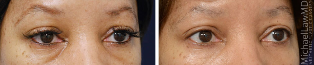 eyelid surgery photos