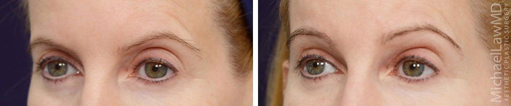 blepharoplasty surgery photos