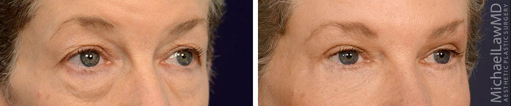 blepharoplasty surgery photos