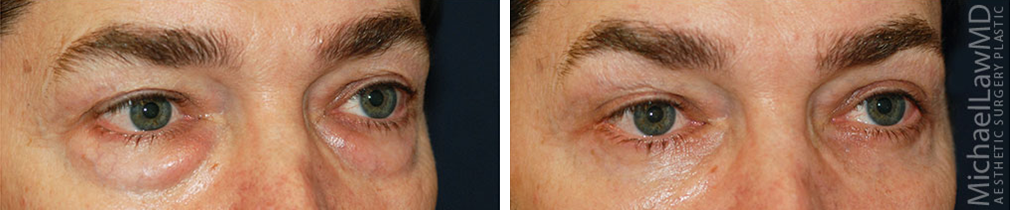 Before and After Eyelid Surgery