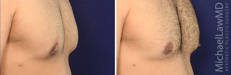 Crater Deformity Correction / Gynecomastia Surgery Revision
