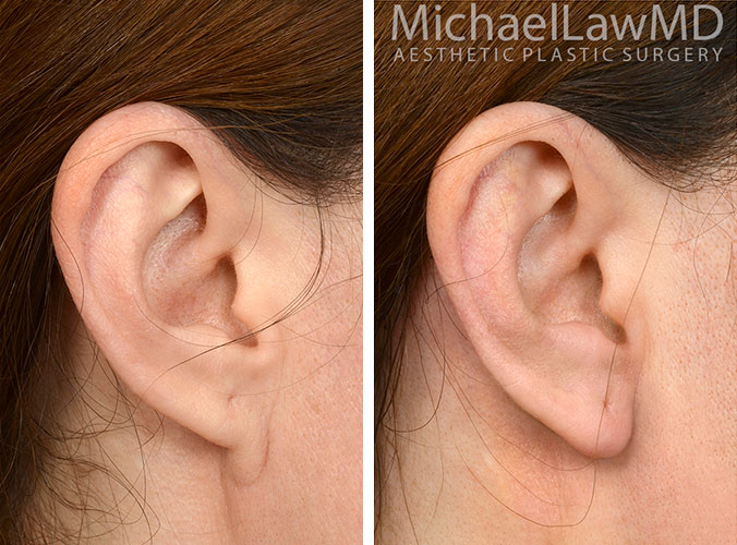 Earlobe Repair