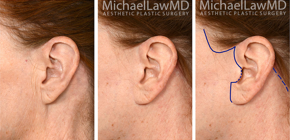 facelift-scars-19a