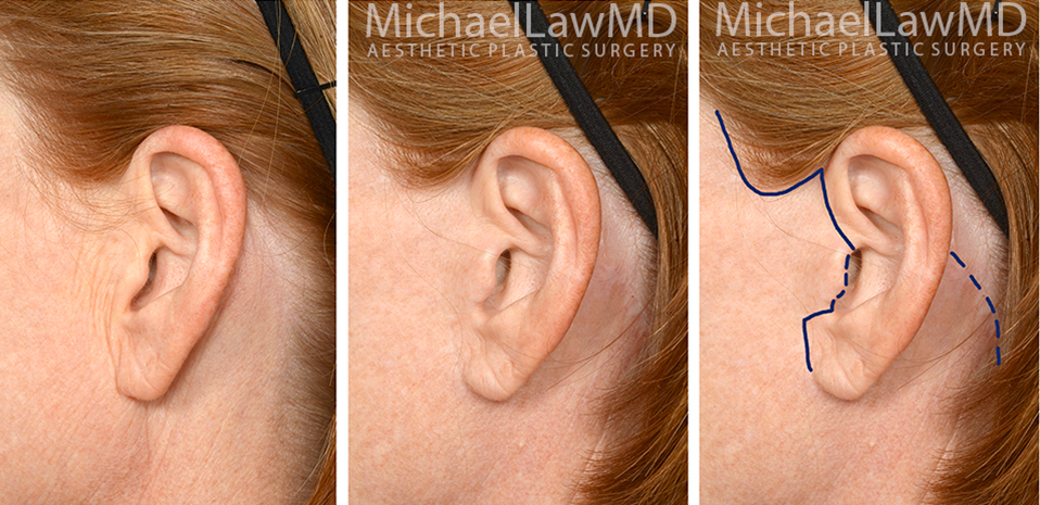 facelift-scars-20a