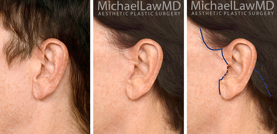 facelift-scars-21a
