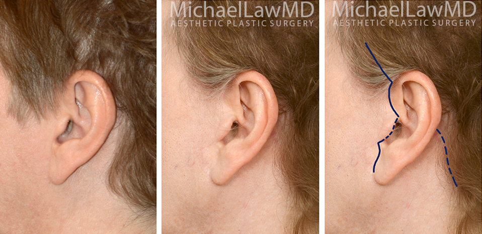 facelift-scars-24a
