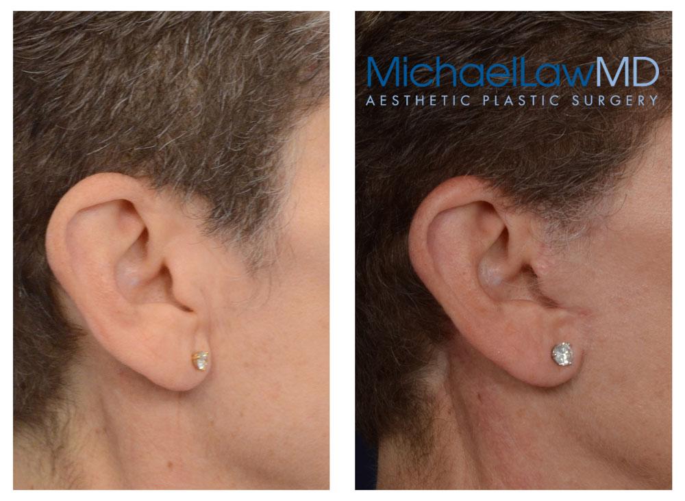 Facelift Scars