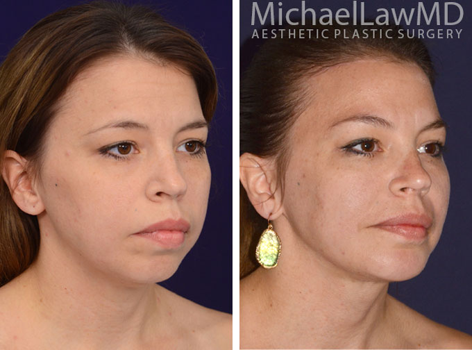 Raleigh, North Carolina Chin Implant - Facial Implants