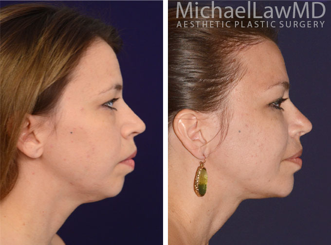 facial-implant-1s