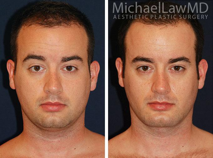 facial-implant-2f