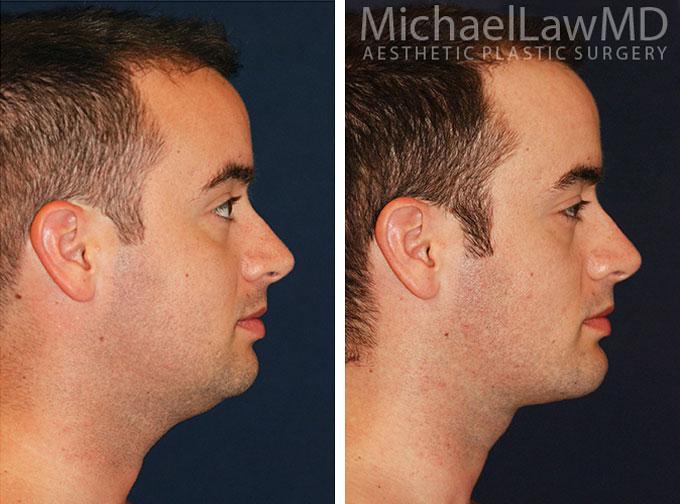 facial-implant-2s