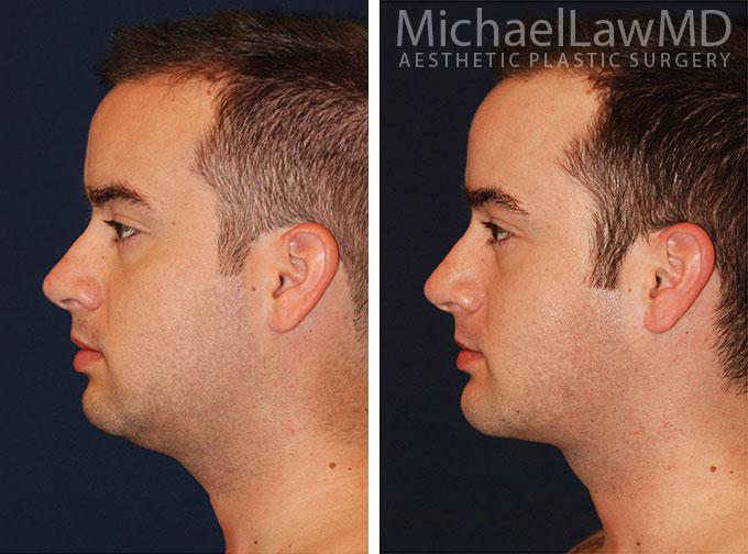 facial-implant-2ss