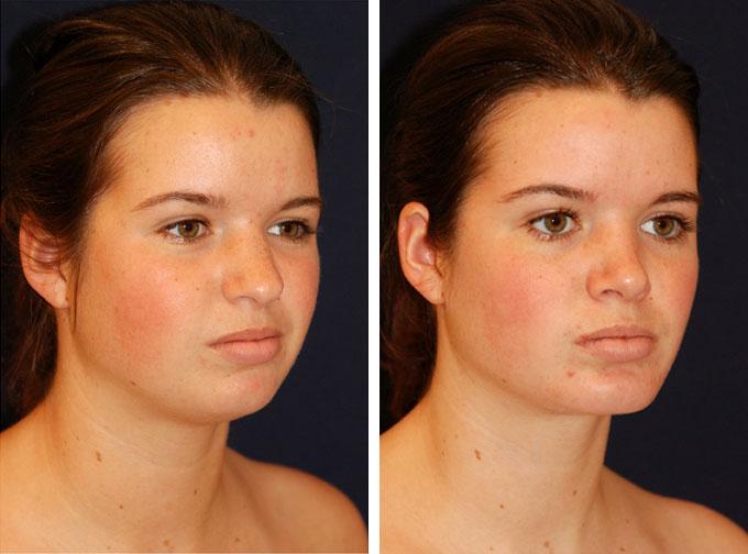 facial-implant-4o