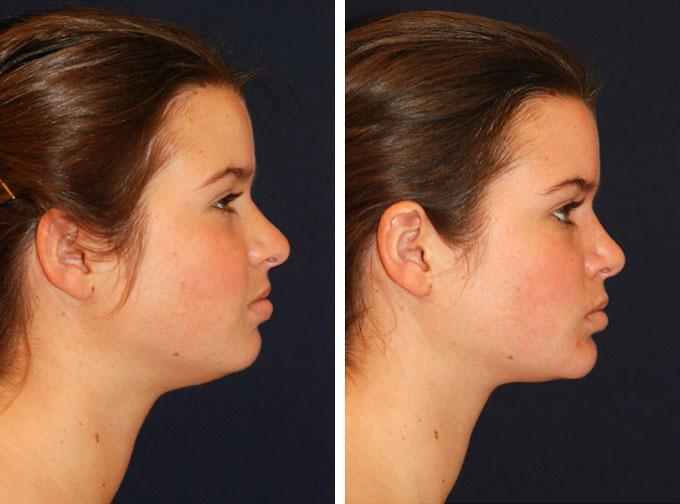 facial-implant-4s