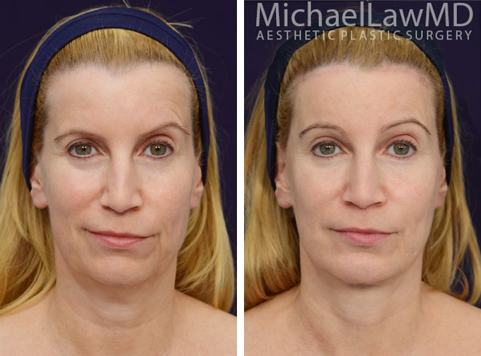 facial-implant-5f
