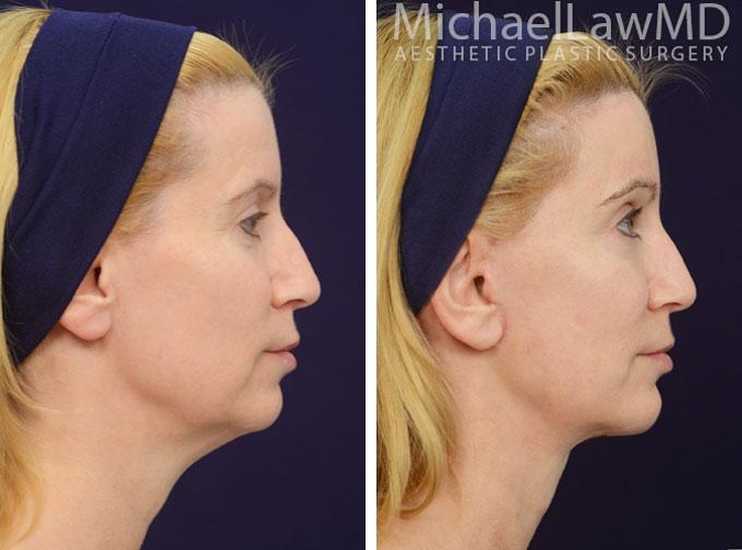 facial-implant-5s