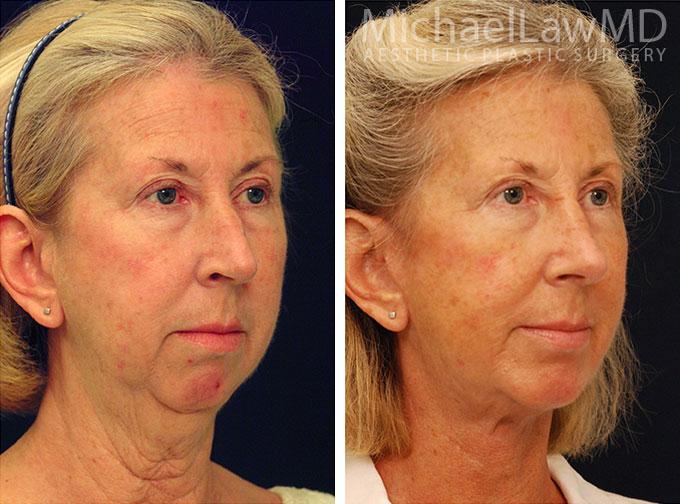 facial-implant-6o