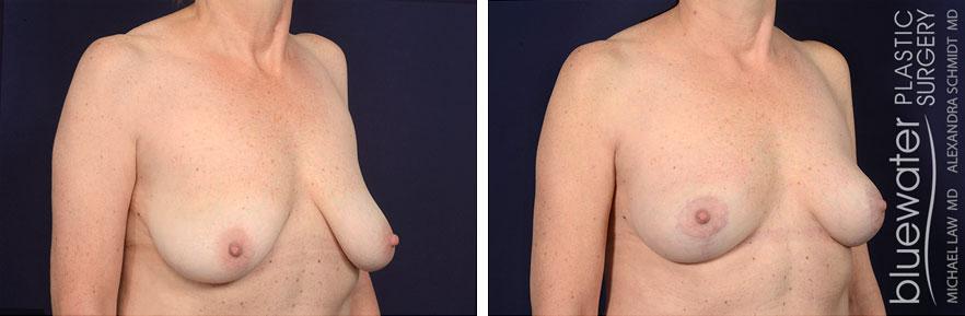 breastgraft1b_2_25_21